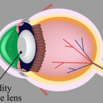 Nutrients-To-Prevent-Cataracts-And-Macular-Degeneration